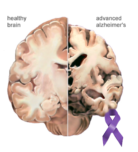 Alzheimer's Disease effect on the brain and the AD ribbon