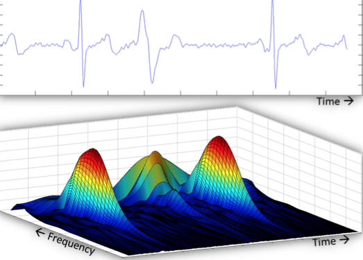 Figure 1A consists of images of three different screens. They show real time processing of physiological waveforms to recognize patterns and provide input to machine learning systems. At U-M, the computer systems can continuously record and store data from any given patient.